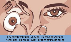 removal-box-prosthetic-eye-artificial-eye-information-eye