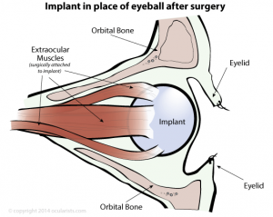 Orbital eye implant in place of eyeball after surgery (enucleation)